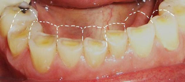 Стираемость эмали приводит к оголению дентина