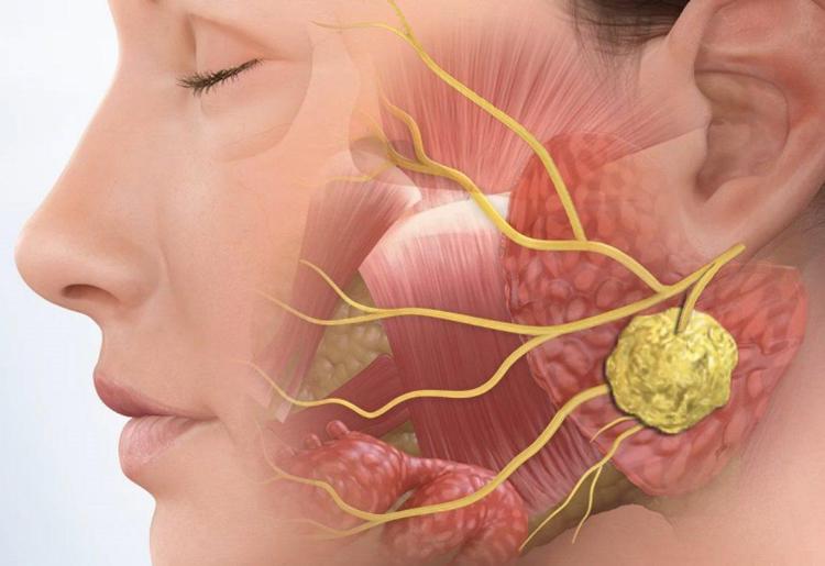 Слюннокаменная болезнь: 7 действий, как избавиться от проблемы