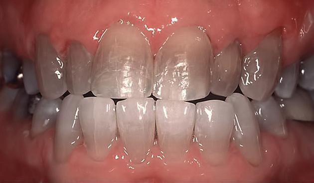 Тетрациклиновые зубы плохо поддаются отбеливанию