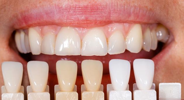 Оттенок зубов во многом зависит от цвета дентина