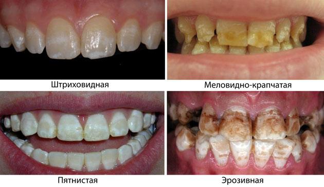 На фото показаны формы заболевания