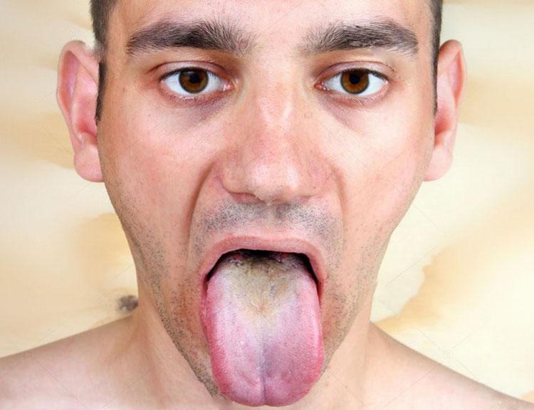 Коричневый налет на языке у взрослых: причины появления