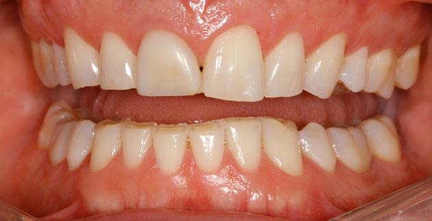 При бруксизме зубы стираются и становятся чувствительными