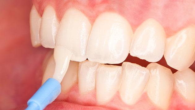 Процедура фторирования зубов укрепляет эмаль