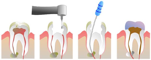 На фото показана схема удаления нерва