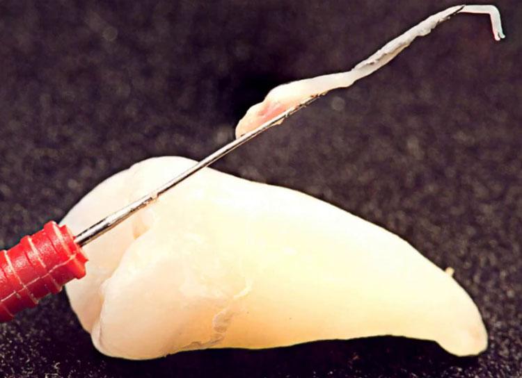 Может ли нерв в зубе отмереть сам