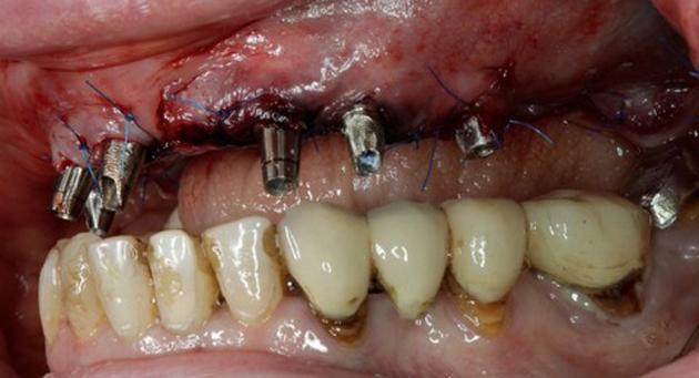 Импланты ставятся в лунки сразу после удаления зубов