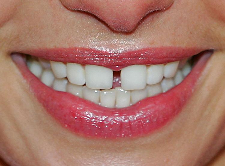 6 способов избавиться от щели между передними зубами