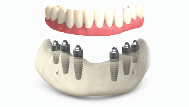 Метод восстановления зубов All-on-6