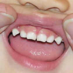 Глазные зубы