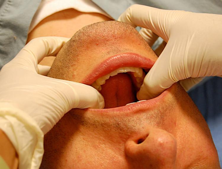 5 интересных фактов о вывихе челюсти