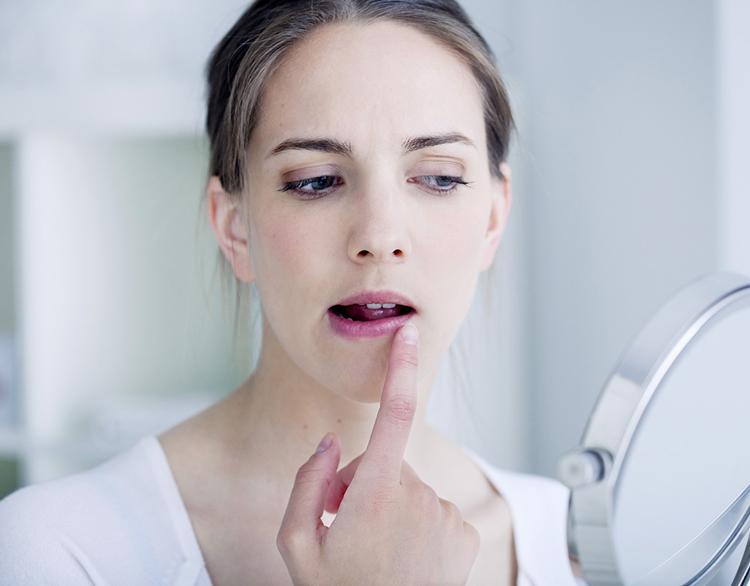 5 причин появления заед в уголках рта и способы их лечения
