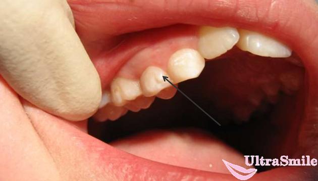 эмалевые капли зубов