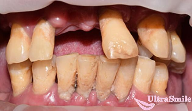 потерея зубов