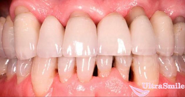 Лечение оголенных шеек зубов