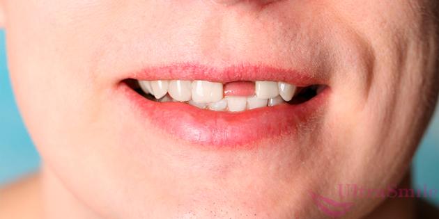нет переднего зуба