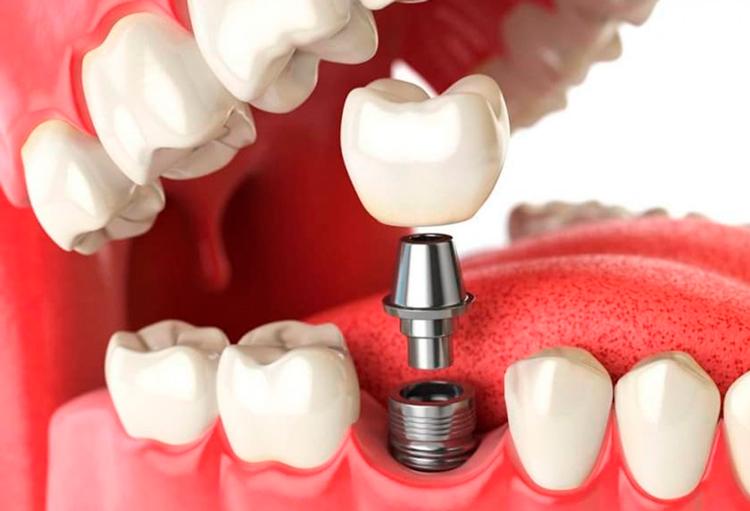 5 особенностей одноэтапной имплантации зубов