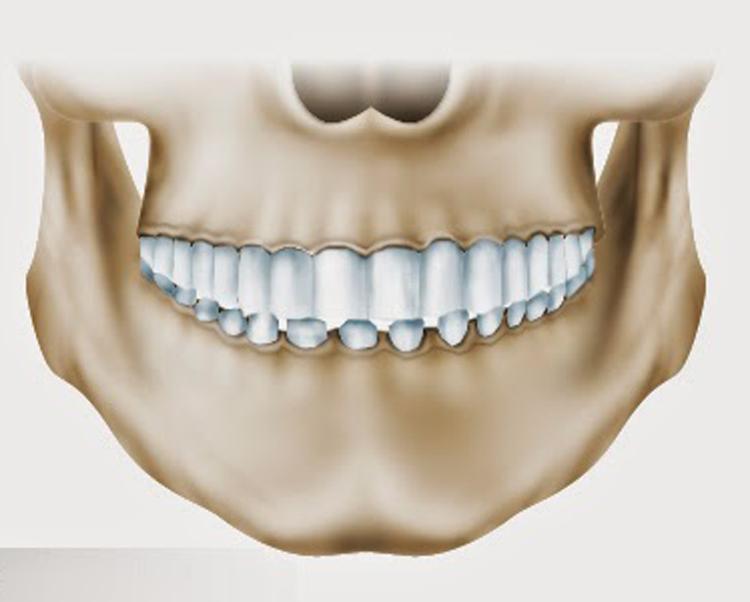5 фактов о глубоком прикусе, которые заставят не откладывать визит к ортодонту