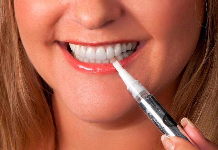 Карандаш для отбеливания зубов Luxury White Pro: обзор средства