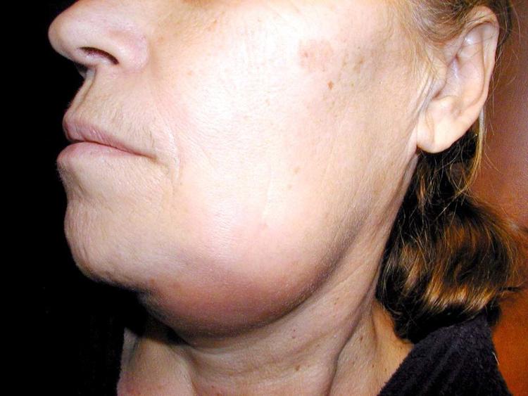 6 фактов о таком опасном заболевании, как остеомиелит челюсти