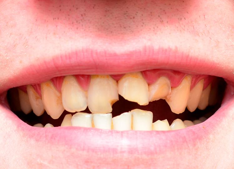 5 полезных советов для тех, у кого крошатся зубы