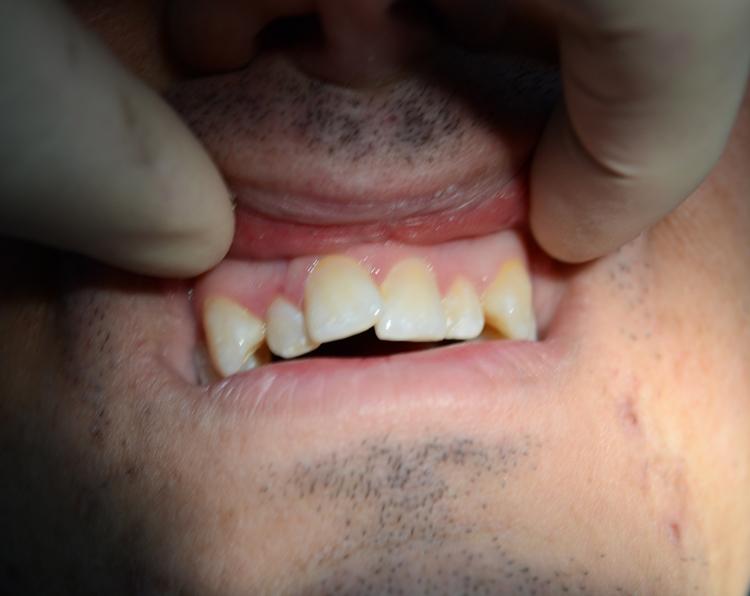5 методов лечения скученности зубов