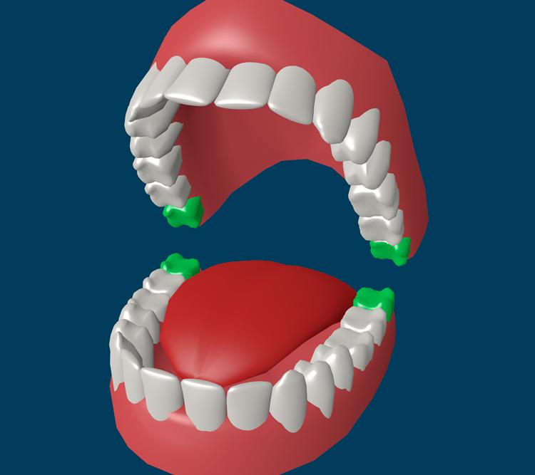 7 интересных фактов про зубы «восьмерки»