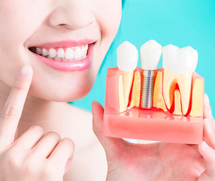 9 услуг, которые обязательно включены в имплантацию зубов «под ключ»