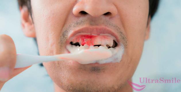 при чистке зубов кровоточат десны