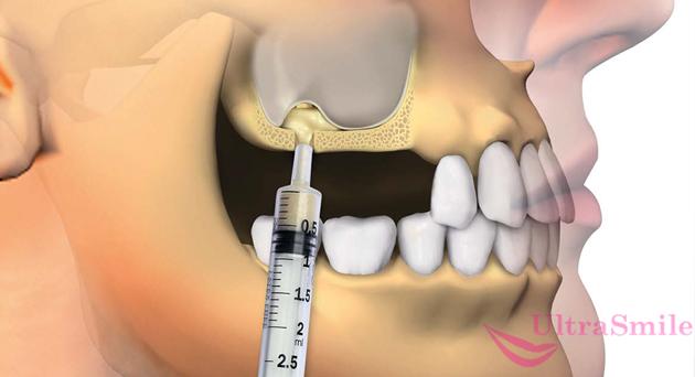 На фото показана схема операции синус-лифтинга