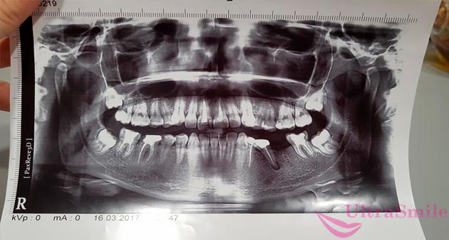 Электрорентгенография зубов на бумаге