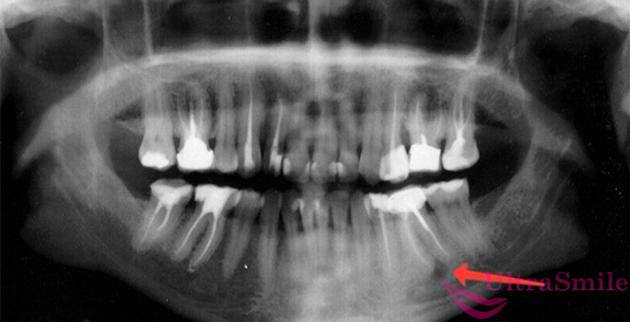 гранулема рентген