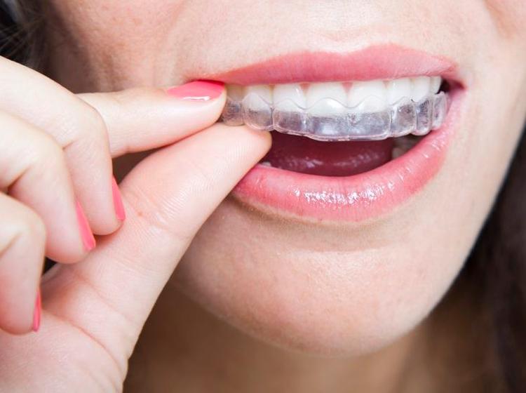 ТОП-5 популярных брендов кап для выравнивания зубов с фото и отзывами
