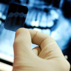 Рентген в стоматологии