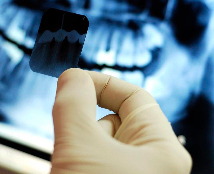 Рентген в стоматологии: 7 типов снимков полости рта