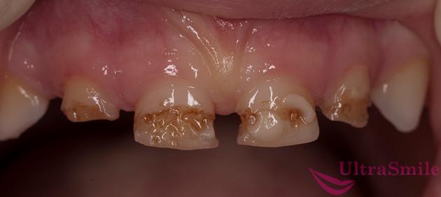 Системная гипоплазия зубов у детей