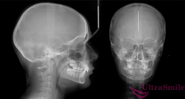 Телерентгенография