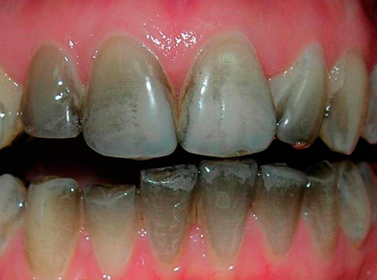 8 распространенных причин появления черного налета на зубах