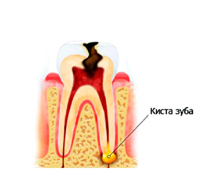 8 типов зубных кист, а также методы их лечения