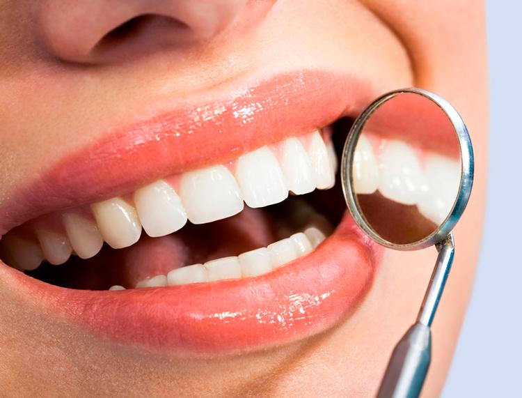 7 мифов про разные способы отбеливания зубов