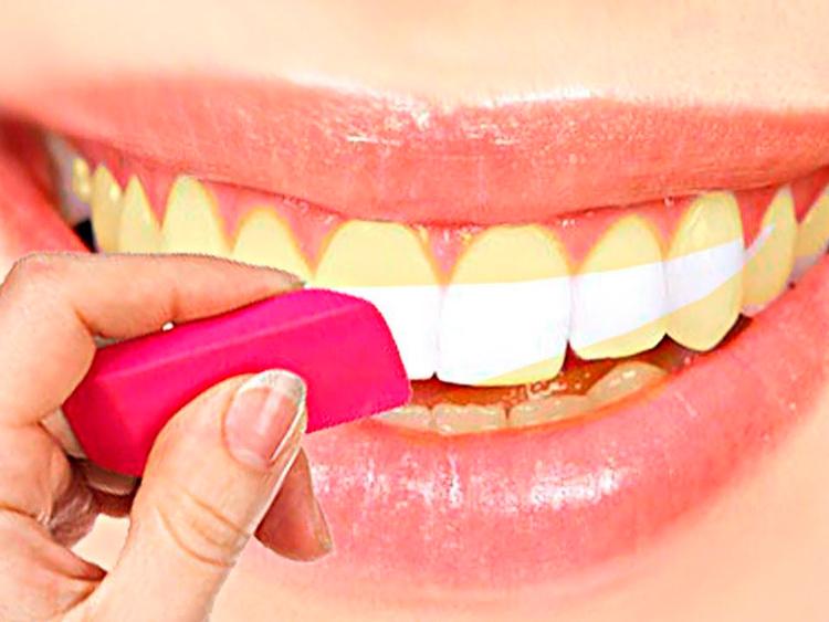 8 советов, как отбелить зубы дома без вреда для эмали