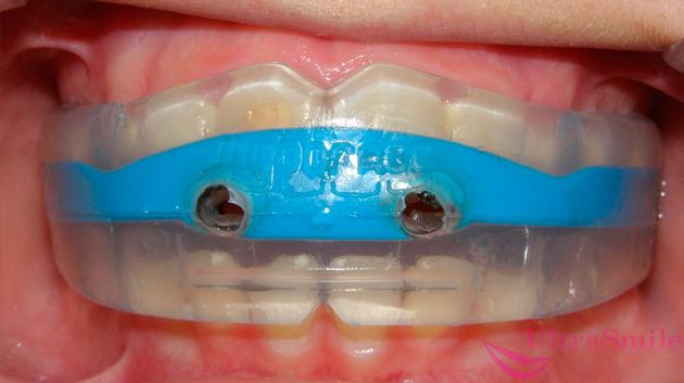 Брекеты: фото до и после исправления неправильного прикуса зубов, изменение лица