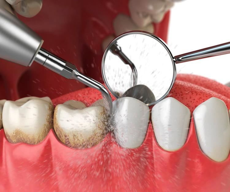 6 этапов профессиональной чистки зубов с фото до и после