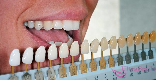 осветлить зубы на 6–10 тонов