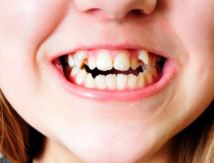 Кривые зубы у ребенка: советы родителям и методы профилактики