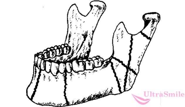 перелом нижней челюсти виды