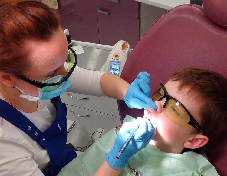 8 показаний для проведения пластики уздечки верхней губы и виды операций