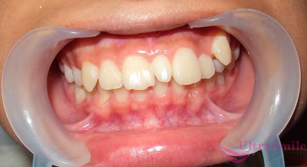 лишние зубы