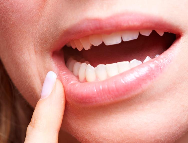 7 типов стоматита, которые приводят к белым язвам во рту