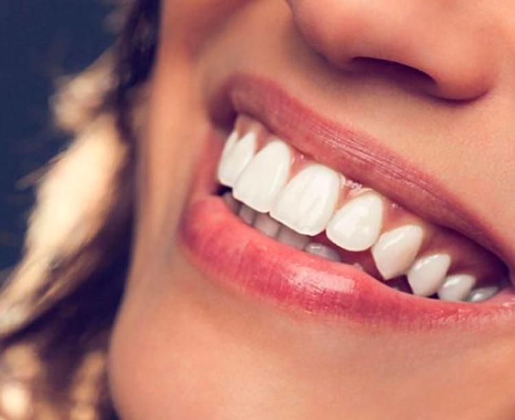 7 методов, как изменить форму и цвет фронтальных зубов